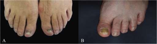 Open access photo of fungal toenails