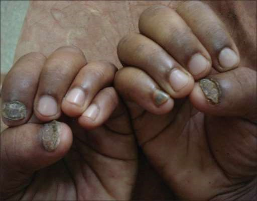 Open access image of fungal finger nails