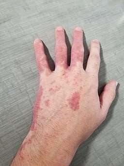 Port-wine stain hand