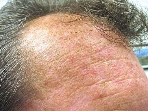 Actinic keratoses on forehead