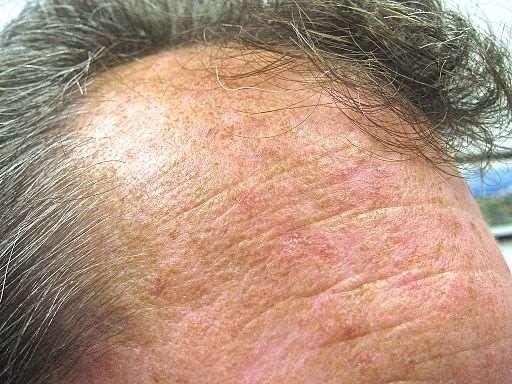Actinic keratoses on forehead