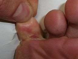 athlete's foot showing cracked skin