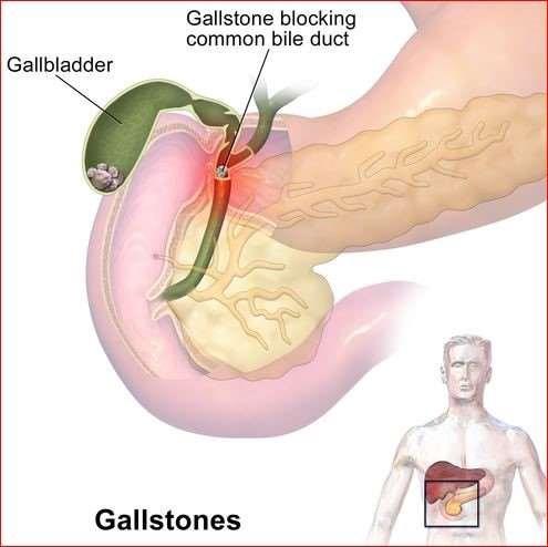 Gallstone blockage