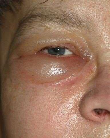 Fluid retention - eye area