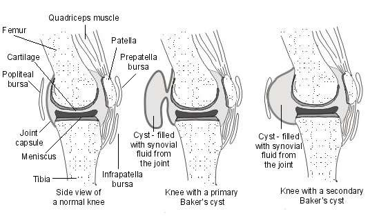 Baker's Cyst. Behind the knee swelling (Baker's cyst ...