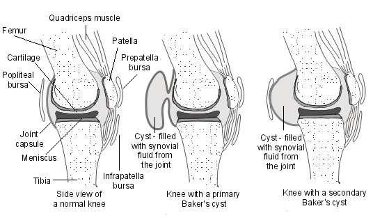baker u0026 39 s cyst  behind the knee swelling  baker u0026 39 s cyst
