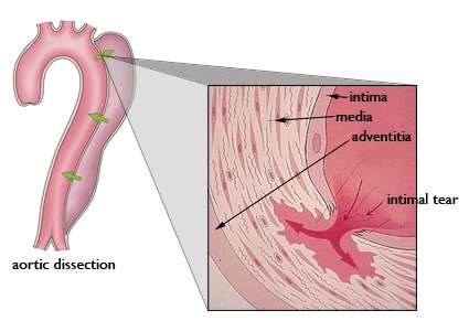 Aortic wall layers