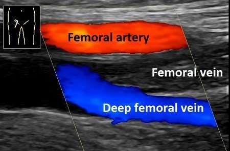 Colour ultrasonography