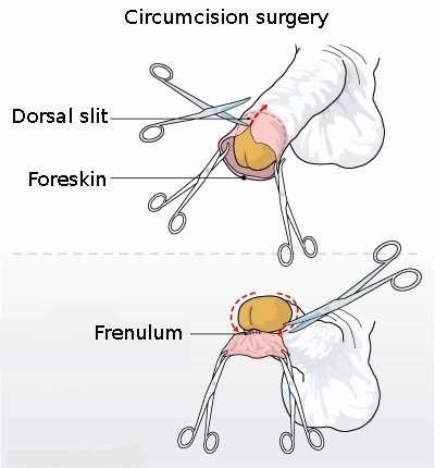 Circumcision, MrArifnajafov [CC-SA-1.0] via http://en.wikipedia.org/wiki/File:Circumcision_illustration.jpg