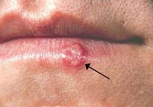 cold sore on lip open access
