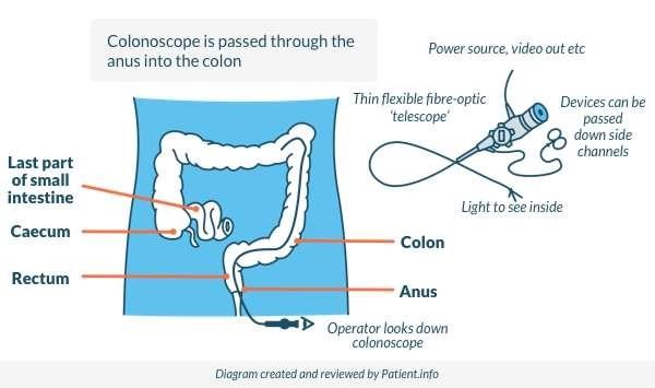 Colonoscopy new