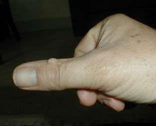 Common wart on thumb