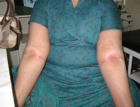 Flexural accentuation of eczema