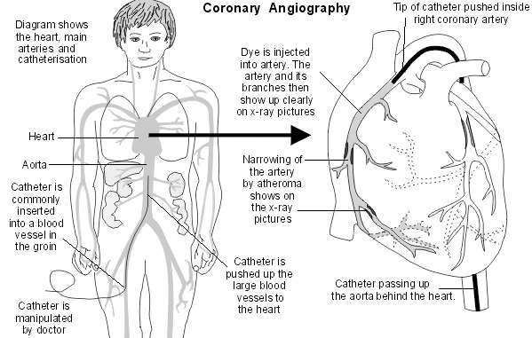 coronary angiography  medical investigation into angina