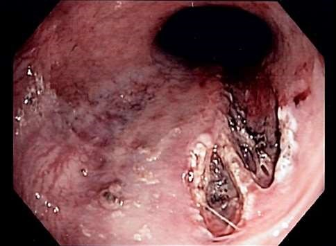 Mallory-Weiss tear endoscopic image