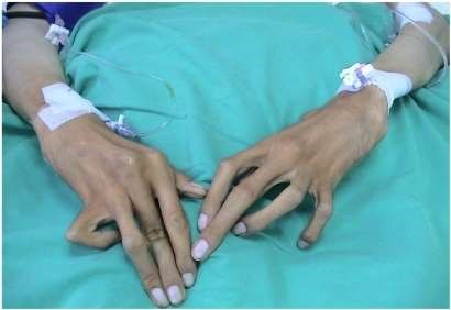 Marfan syndrome fingers