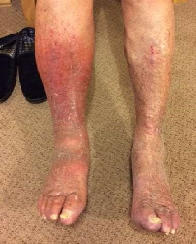 Patient photo of varicose eczema: patient consent obtained. Original photo deleted.