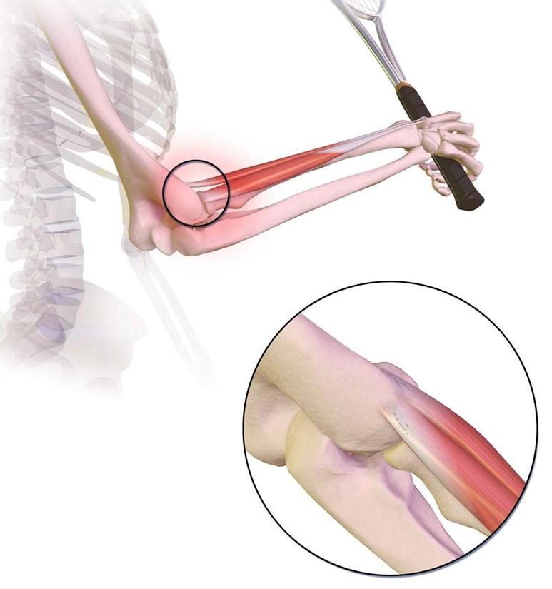 Forearm Injuries And Fractures Patient