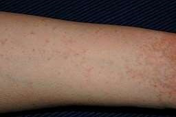 Scabies on the arm