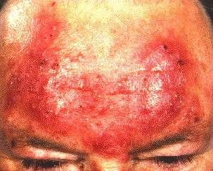 ROSACEA -ON FOREHEAD