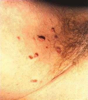 SKIN TAGS -IN AXILLA