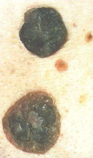 SEBORRHOEIC WARTS -CLOSE UP