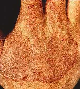 TINEA MANUUM -ON HAND