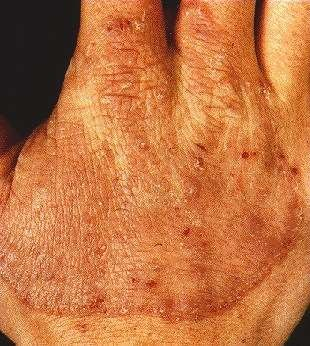 TINEA MANUUM -ON HAND