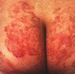 TINEA CORPORIS -BUTTOCKS