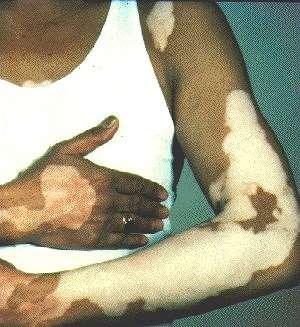 VITILIGO -ON ARMS