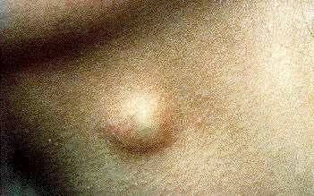 how to get rid of sebaceous cyst on scrotum