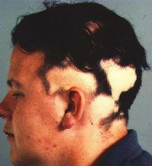 ALOPECIA AREATA - SCALP PATCHES