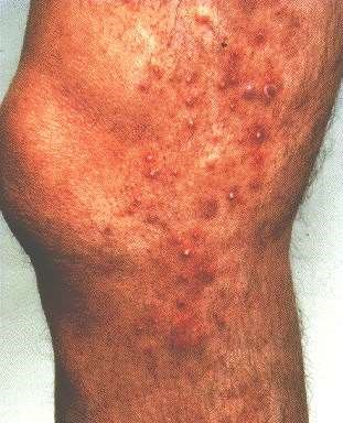 FOLLICULITIS -ON LEG