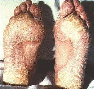 FOOT PSORIASIS -SHOWING HYPERKERATOSIS