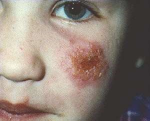 impetigo on child's face