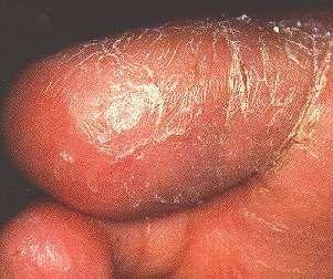 JUVENILE PLANTAR DERMATITIS -ON TOE
