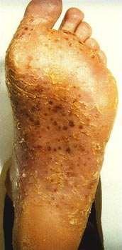 Palmoplantar pustulosis foot