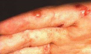 SCABIES OF THE FINGER