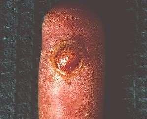 PYOGENIC GRANULOMA -CLOSE UP TOP