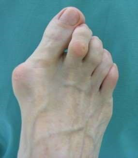open access photo of hallux valgus