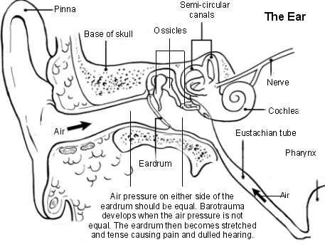Ear - barotrauma