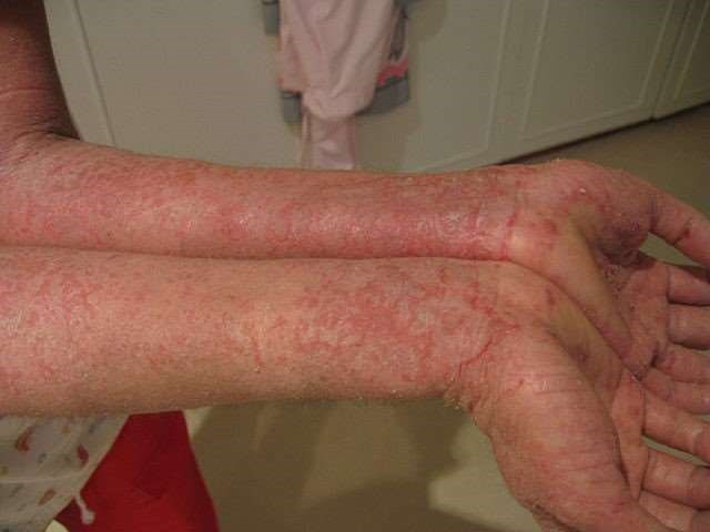Atopic eczema on arms