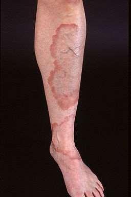 GENERALISED GRANULOMA ANNULARE - LEG