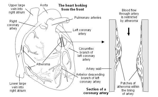 Heart with atheroma