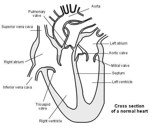 Ventricular septal defect hole in the heart patient heart with septum ccuart Gallery