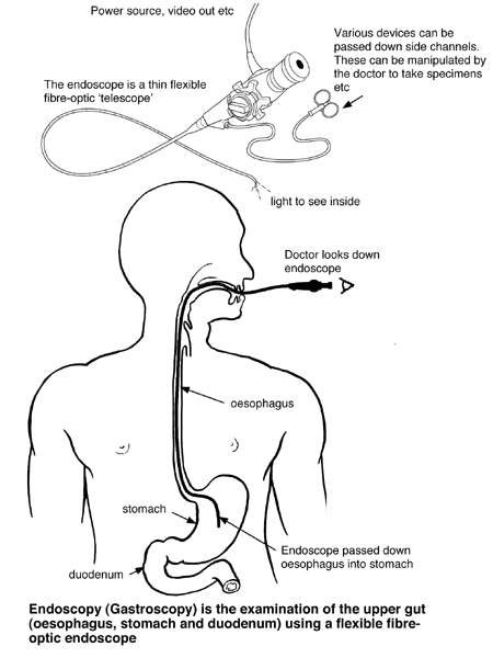 i105_l?v=636475635710000000 endoscopy gastroscopy diagram patient endoscope diagram at panicattacktreatment.co