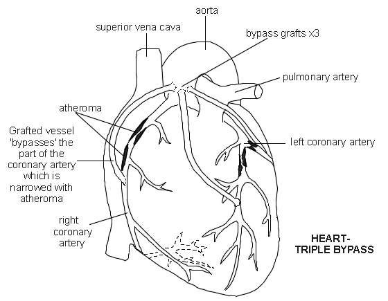 Coronary artery bypass grafting open heart surgery patient what are the intended benefits of coronary artery bypass grafting ccuart Images
