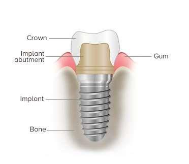 Toothpick implant image
