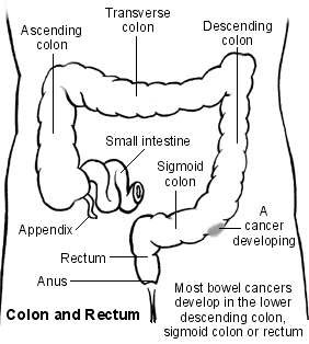 Colon Rectal And Bowel Cancer Symptoms And Treatment Patient
