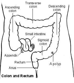 Large bowel showing a polyp